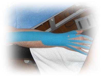 Tendinitis dedos.JPG